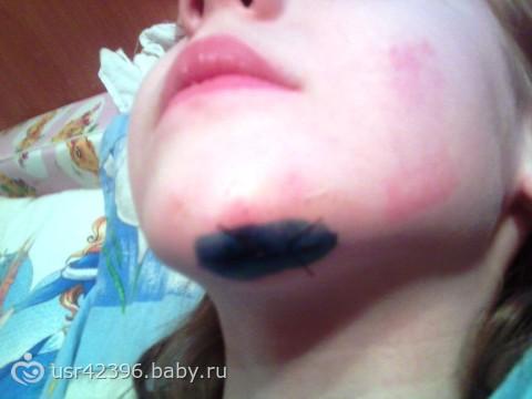 аллергия на джунгарских хомяков
