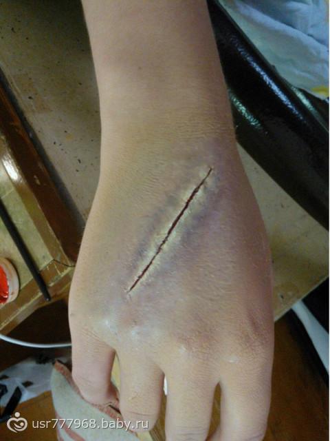 Болит попа после уколов шишки
