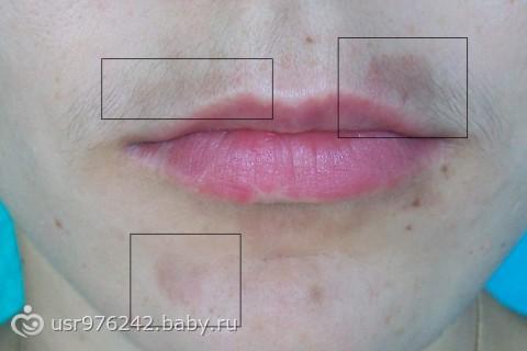 Содержание 1 этиология нарушения 2 образование пятнышек вокруг губ 3 эффективное лечение.