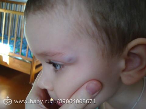 У ребенка сильный ушиб шишка на лбу что делать 151