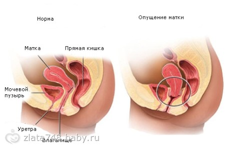 какая вагина до рождения и после фото