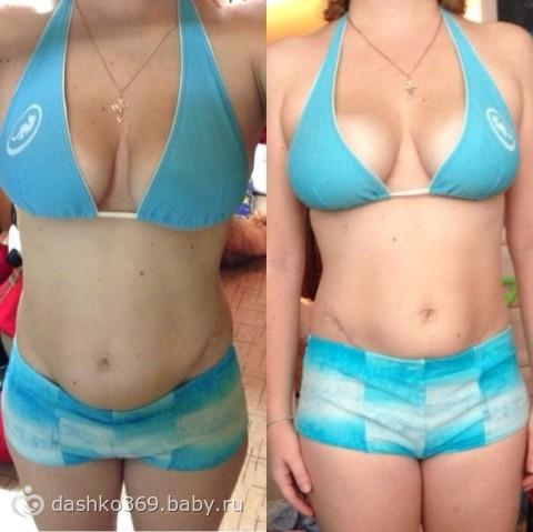 спорт после увеличения грудины за 3 дня