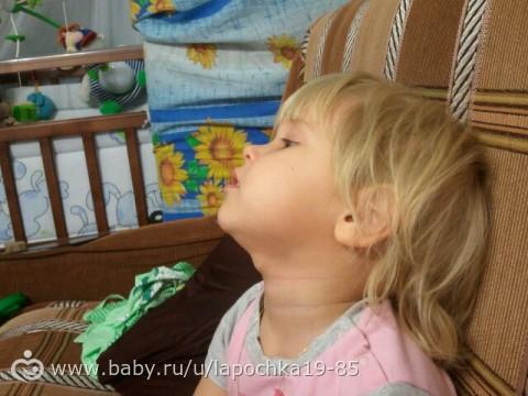 Фото кисты на шее у ребенка