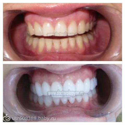 White light отбеливание зубов инструкция
