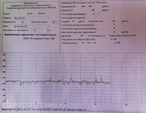 Расшифровка ктг при беременности 37 недель