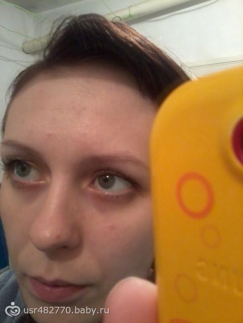 Прыщи на лице при молочнице фото