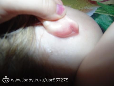 Диатез за ухом у ребенка фото