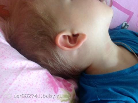 Часто шишка никак не беспокоит малыша и проходит без осложнений.