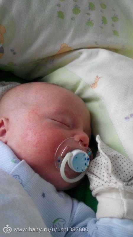 Сыпь на голове у грудного ребенка фото с пояснениями и