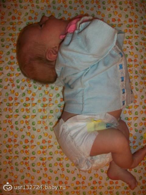 Да, это гипертонус — повышенный тонус мышц-сгибателей, но это совершенно нормальное явление, которое до определенного возраста есть у всех младенцев.