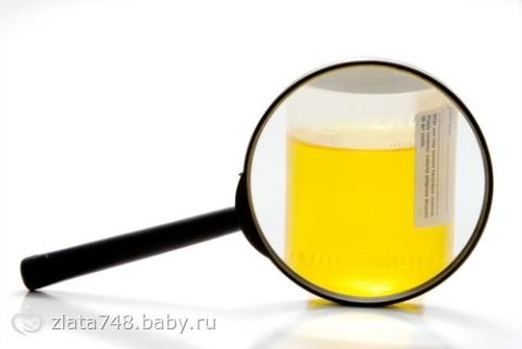Ацетон в моче при беременности